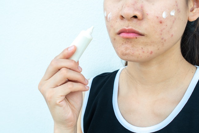 Suddenly developing sever acne might be a sign of infertility.