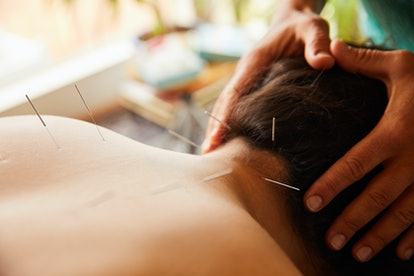 A woman has acupuncture treatment. In combination with other therapies, like CBT or antidepressants, acupuncture might help depression in some people.