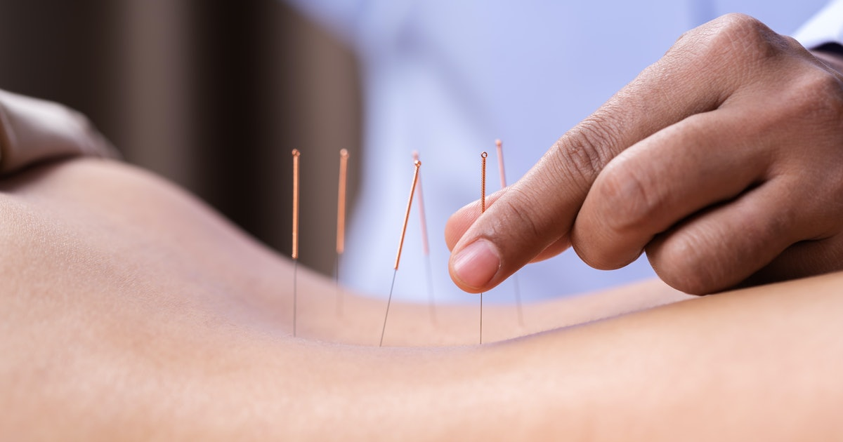 Can Acupuncture Help Depression? Experts Explain What You Should Know