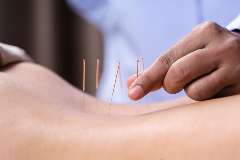 A woman has acupuncture needles placed on her skin. Acupuncture may help with certain symptoms of depression, but needs to be combined with other therapies, experts say.