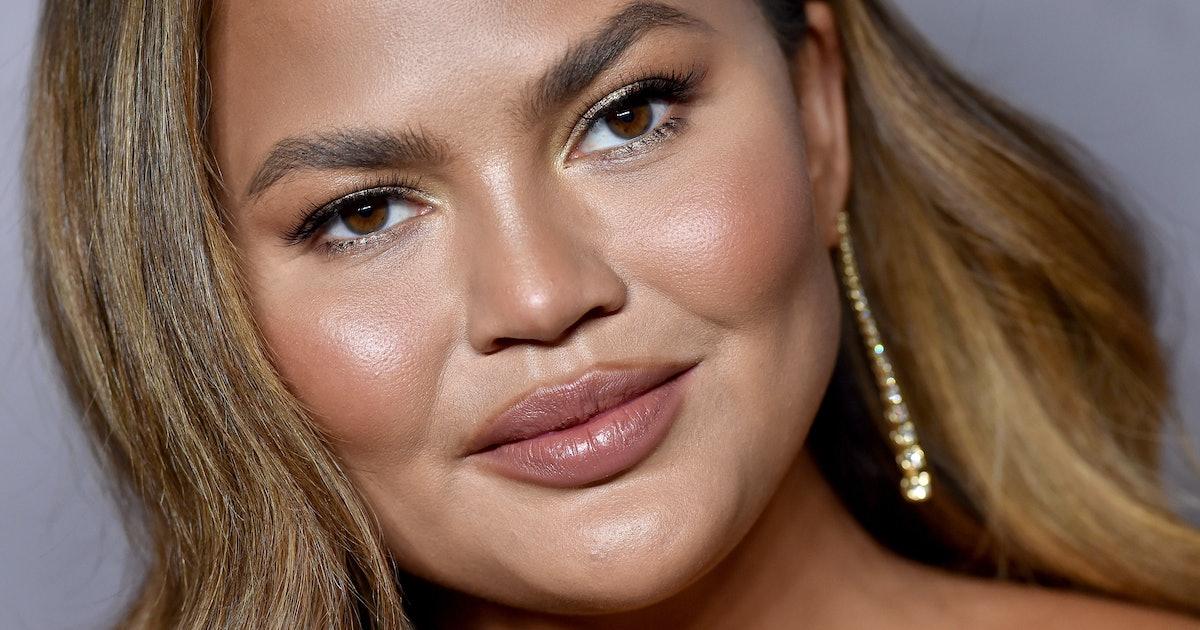 Chrissy Teigen Cannot Believe Pimples Happen Either