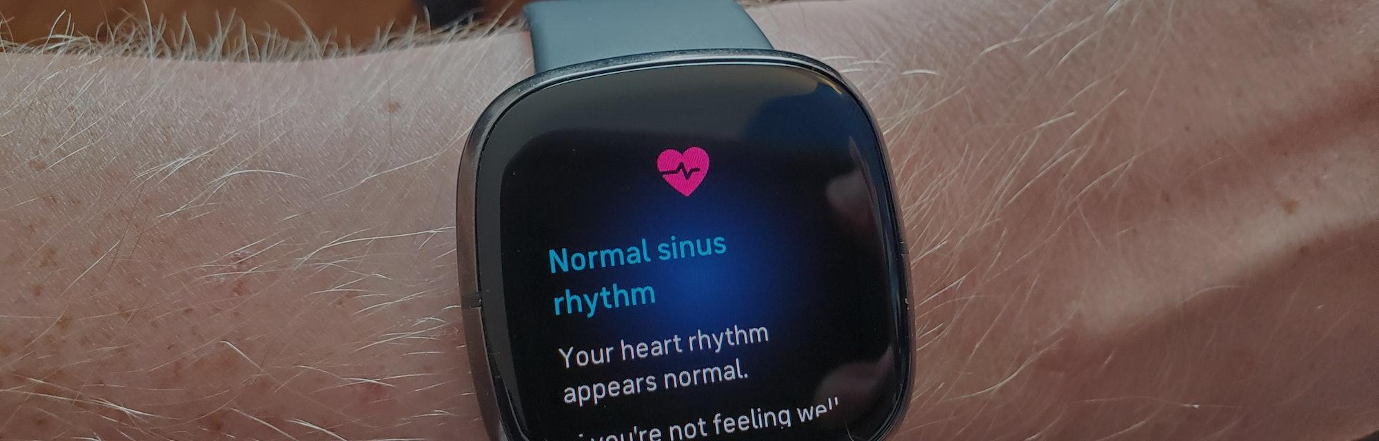 Fitbit Versa smartwatch.