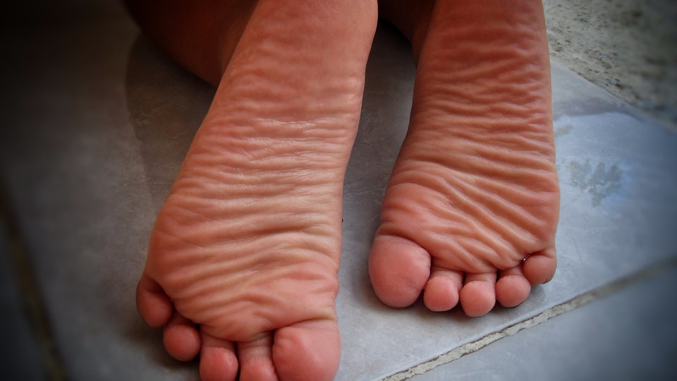 "Doctors think a condition known as ""COVID-19 toes"" may be an early symptom of the novel coronavirus."