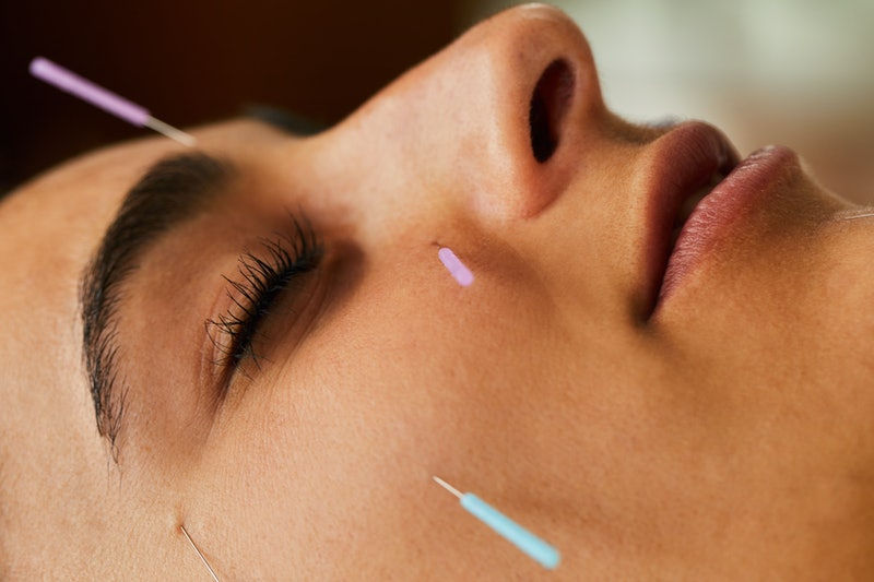 A woman with acupuncture needles in her face. Virtual acupuncture is now a thing that you can do from home.