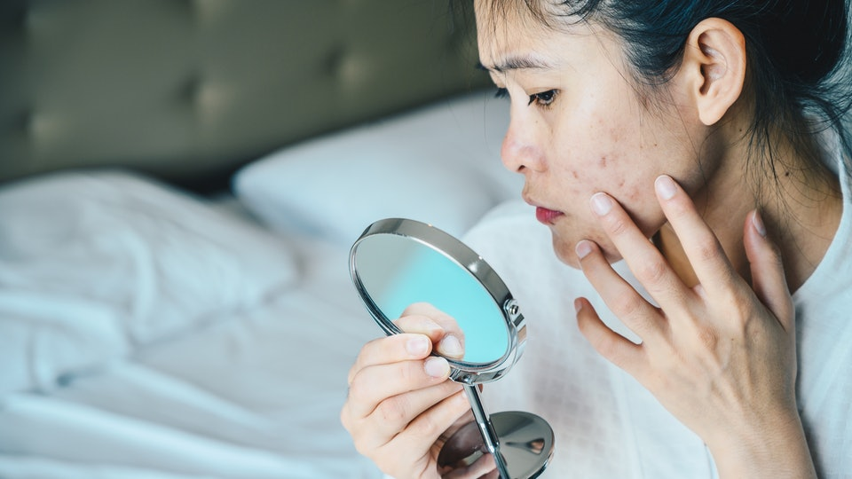 woman checking acne in mirror