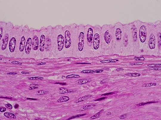 Uterine cells under a slide microscope. Doctors bust these myths about cervical cancer & hpv.