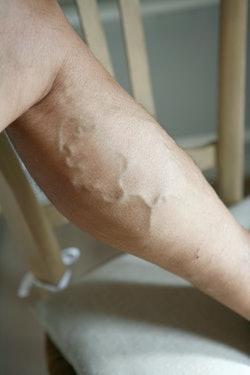 Varicose vein on a leg, Troncular vein on the left leg. The troncular varicose veins are the ones de...