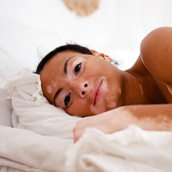 Young brunette latin woman with vitiligo lay on her bed closeup