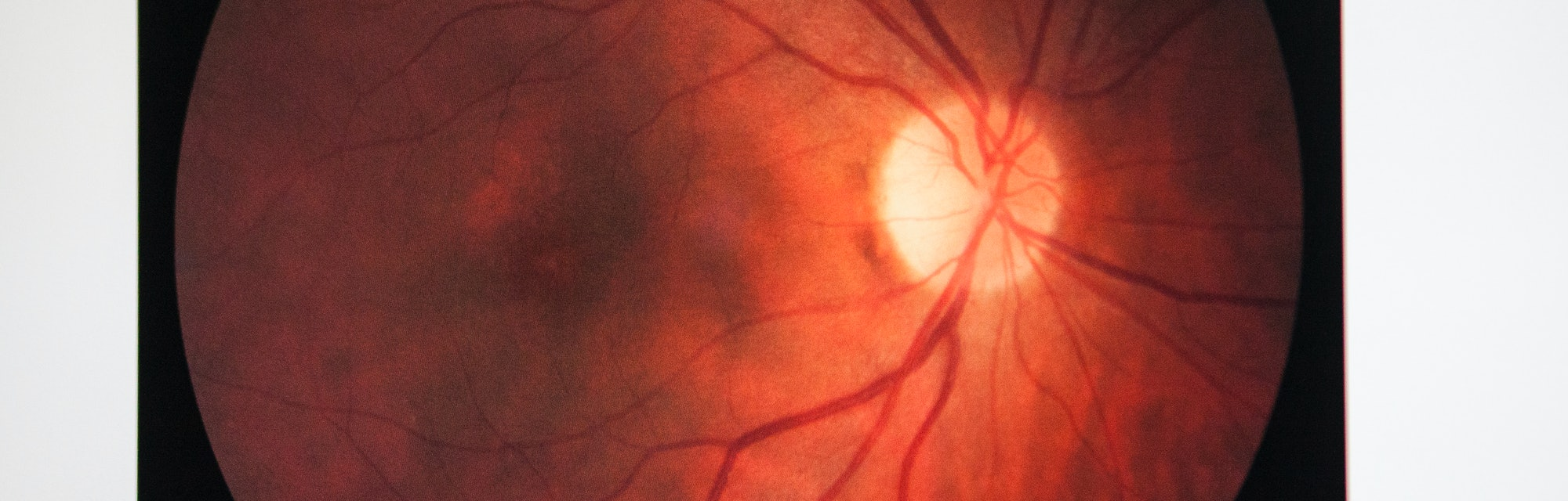 Fundus oculi of a patient suffering from retinal edema. (Photo by: BSIP/Universal Images Group via G...
