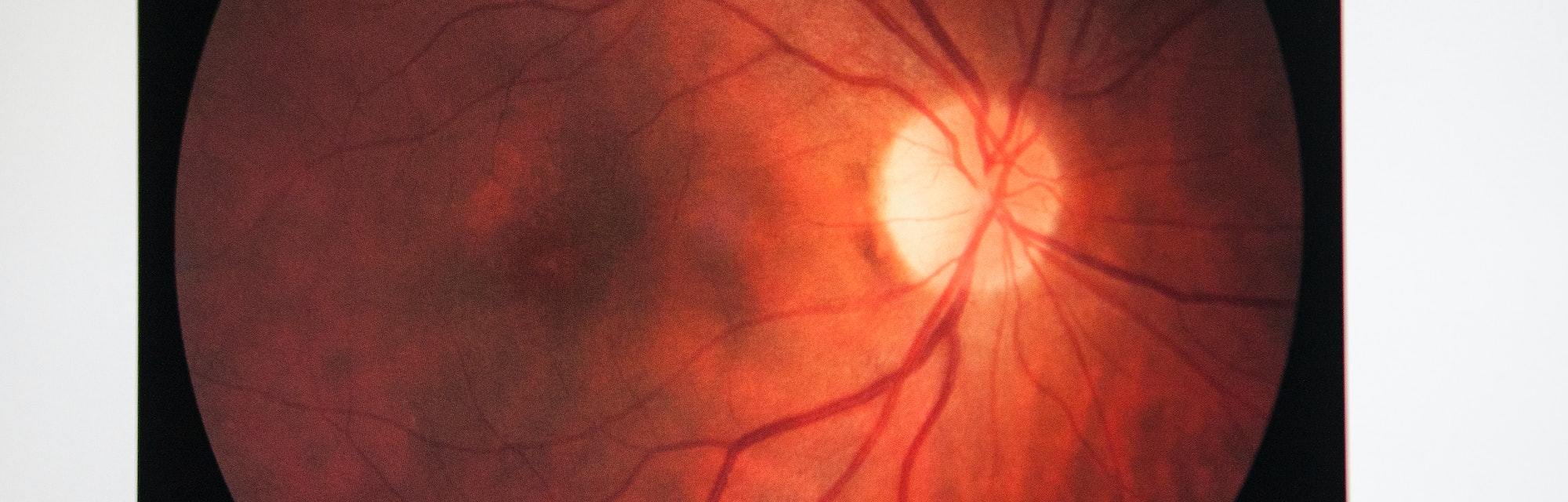Fundus oculi of a patient suffering from retinal edema. (Photo by: BSIP/Universal Images Group via Getty Images)