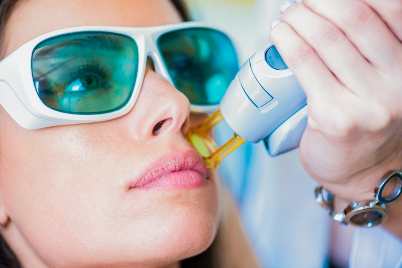 A young woman getting facial hair removed by a laser epilator in a cosmetic center.