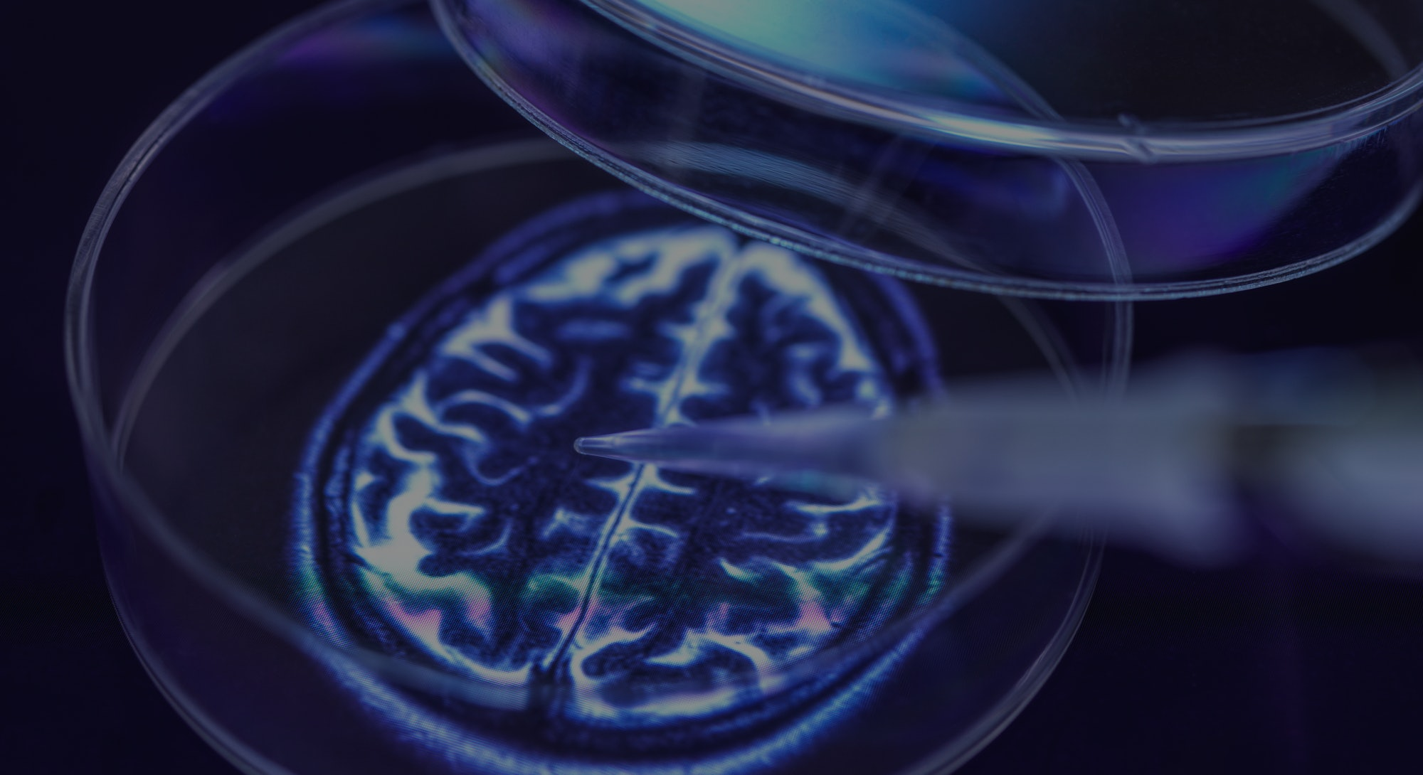 Conceptual image of research into a cure for brain disorders such as dementia and Alzheimer's.