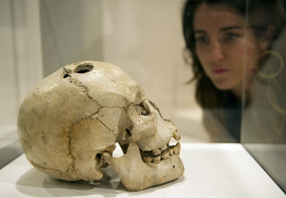 A woman looks at a bronze age skull from Jericho, dated to between 2200 and 2000 BCE, showing the an...
