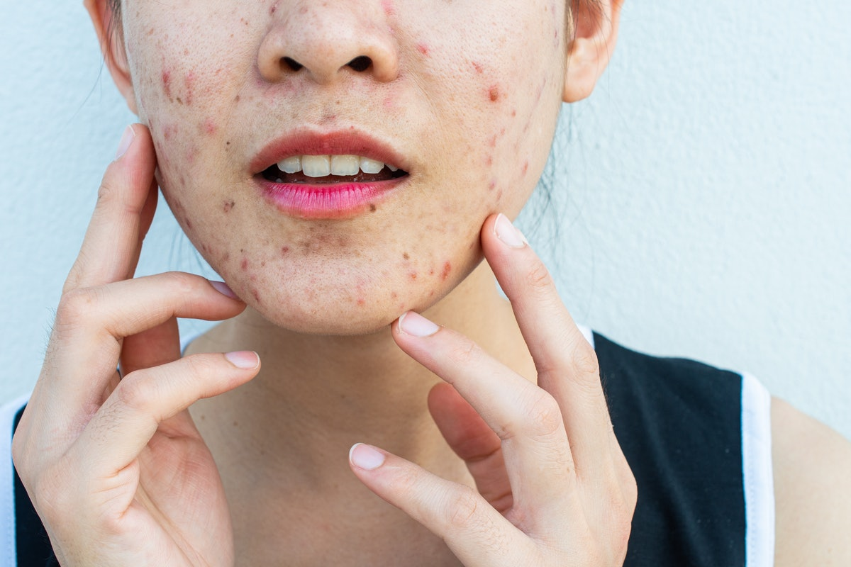 Inflamed acne consists of swelling, redness, and pores that are deeply clogged with bacteria, oil, a...