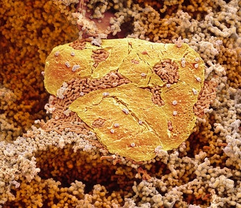 Feet bacteria. Coloured scanning electron micrograph (SEM) of bacteria cultured from between the toe...