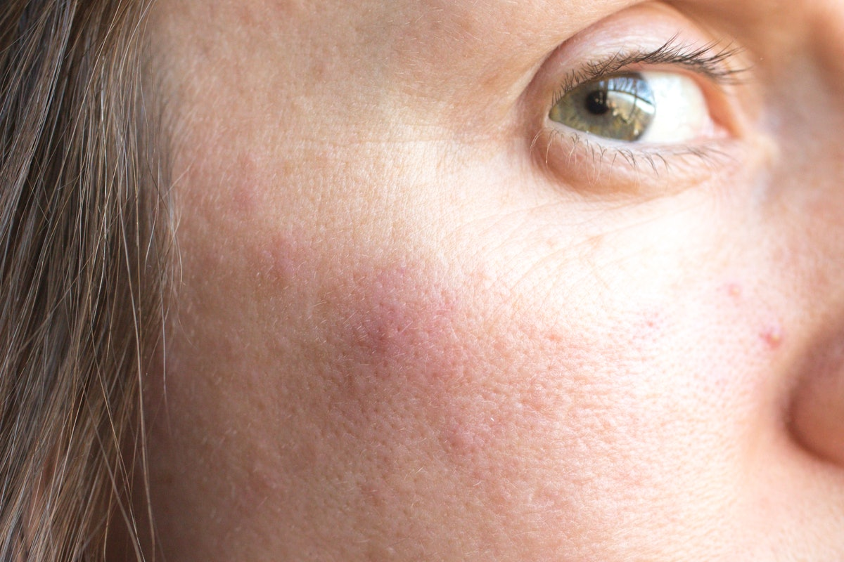 Woman with pimples on face. This closeup image of skin shows adult acne, zits, and skin problems.