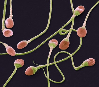 Sperm cells. Coloured scanning electron micrograph (SEM) of human sperm cells or spermatozoa. These ...