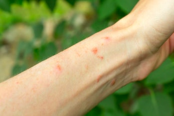 Skin rash on arm from poison ivy plant. Poison ivy blisters on human arm from gardening outdoors.