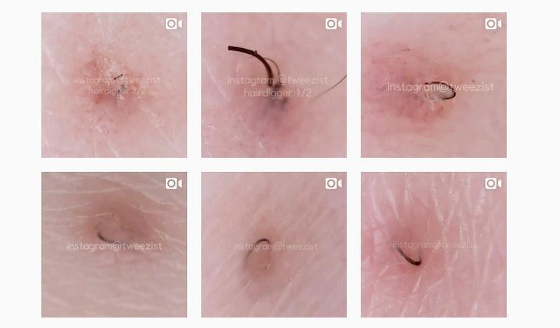 hair treatment ingrown Facial