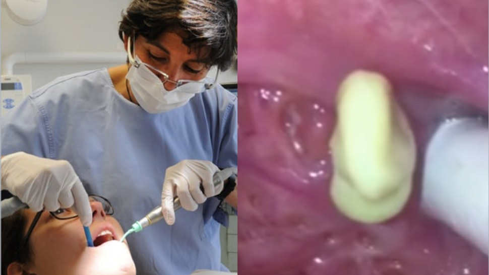 Are Tonsil Stones Dangerous? Those Viral Videos Have Some
