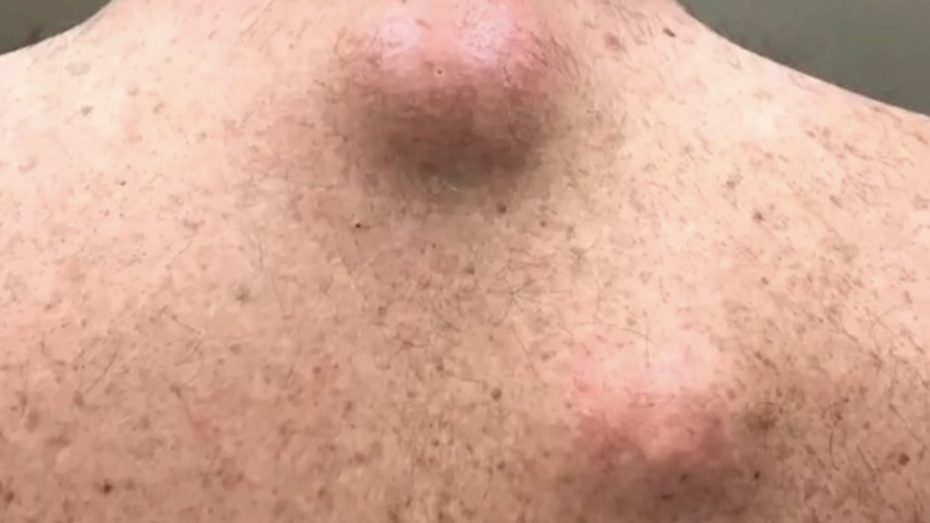 Photos Of Onion Cysts Being Squeezed Out Of This Guy S