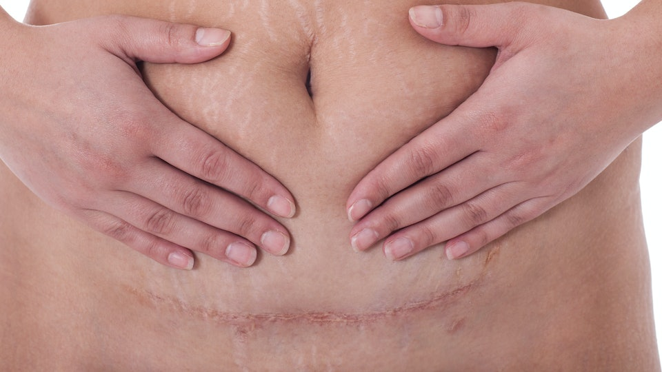 Why Does My C-Section Scar Feel Numb? A Dermatologist Weighs In