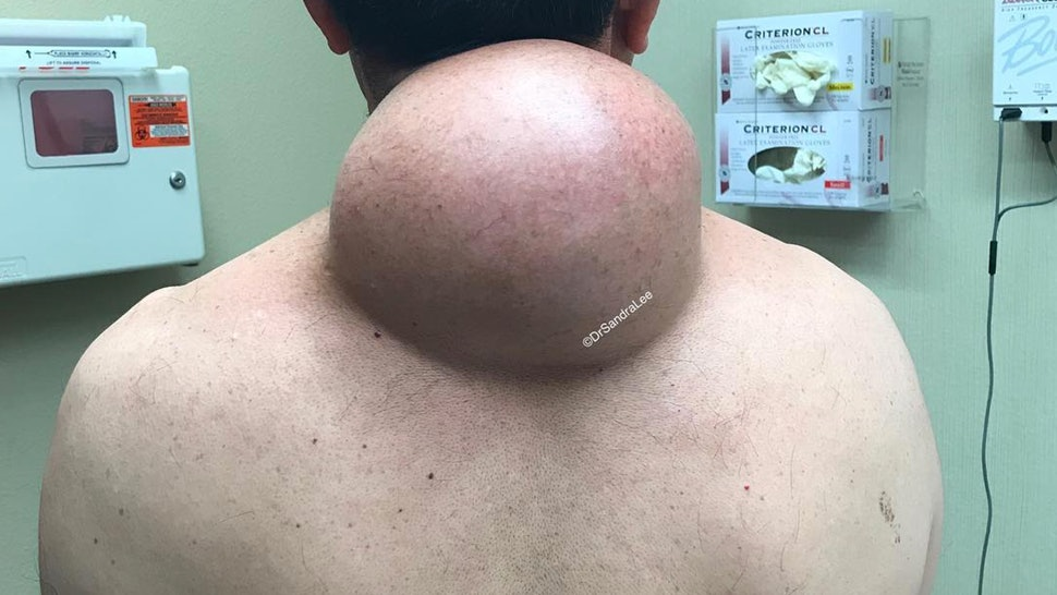 Dr Pimple Popper Videos Dr Pimple Popper S Best Ever