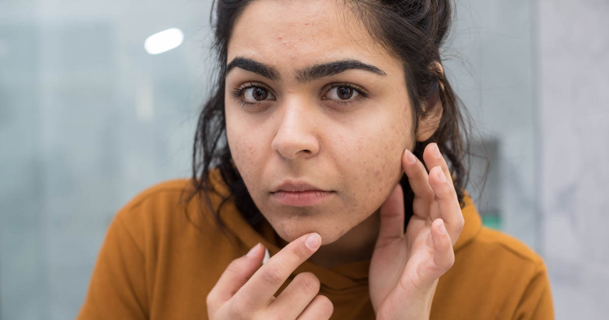 If You Have Acne In These 9 Places It Could Be A Sign Of These Other Health Conditions