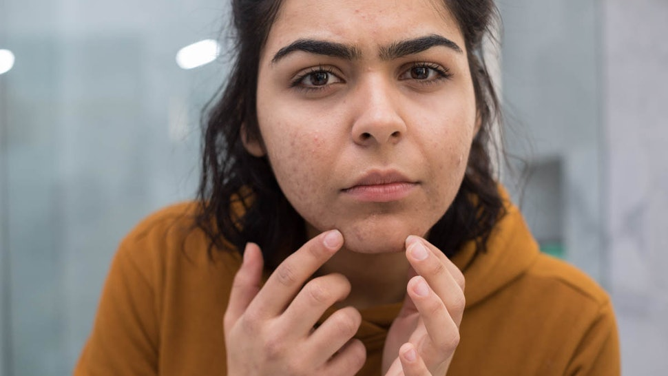 What Causes Female Chin Hair & What It Could Tell You About ...