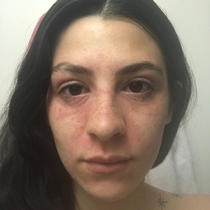 Steroid damaged skin face oral steroids vs injectable