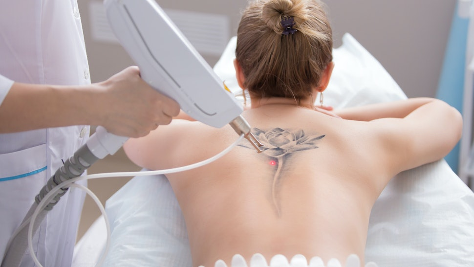 The 7 Most Common Tattoos Women Get Removed, According To Laser Surgeons