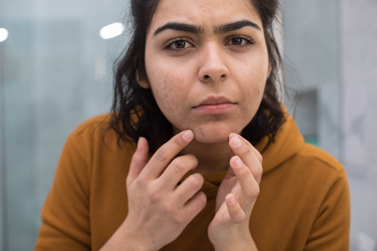 11 Ways You're Popping A Pimple That Could Lead To Scarring