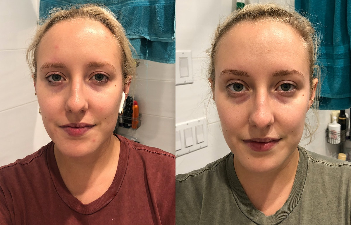 I Took A Complete's Beauty Concentrate Supplement For 30 Days & My Skin Seriously Changed