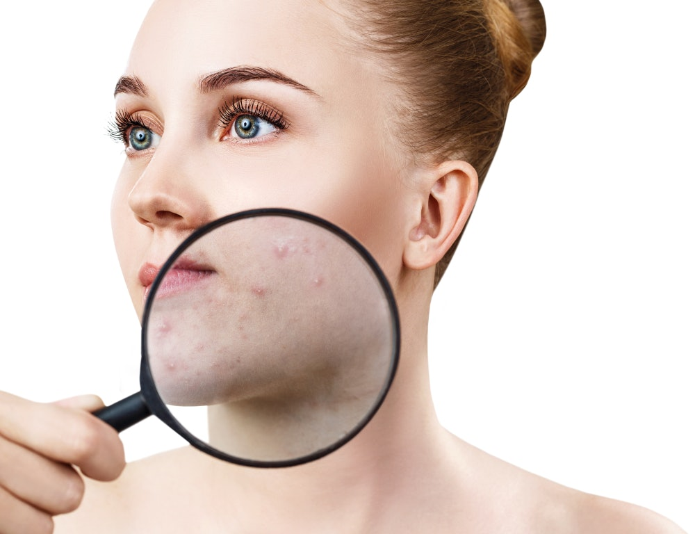 Can Going Vegan Cause Acne? You Might Be Surprised At How