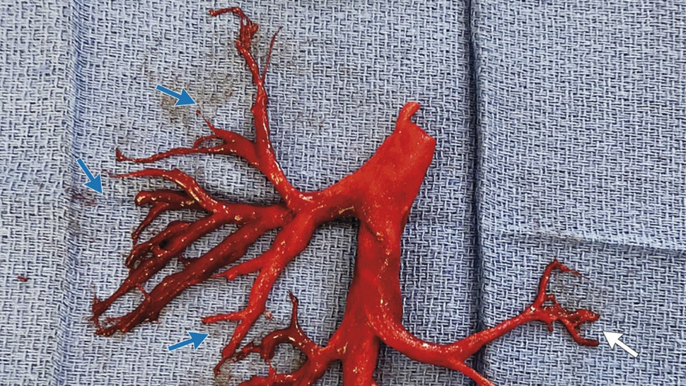 A Blood Clot Shaped Like The Inside Of Mans Lung Is Going Viral