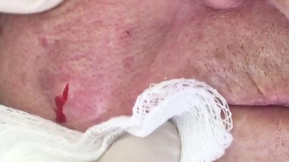 This Video Of A Giant Pimple Being Popped Is Going Viral On