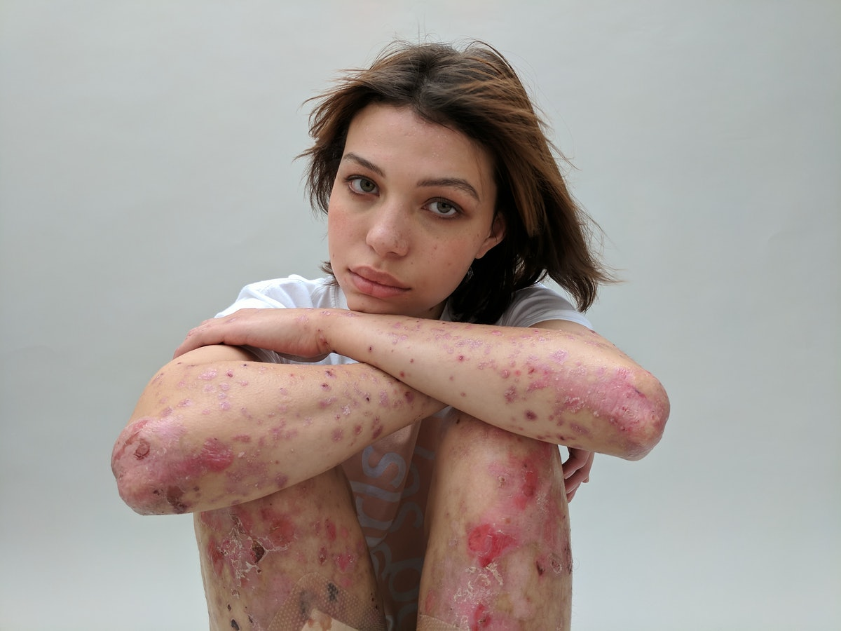 Women With Scars Are Sharing Their Stories & It Will Change How You Feel About Your Own Body