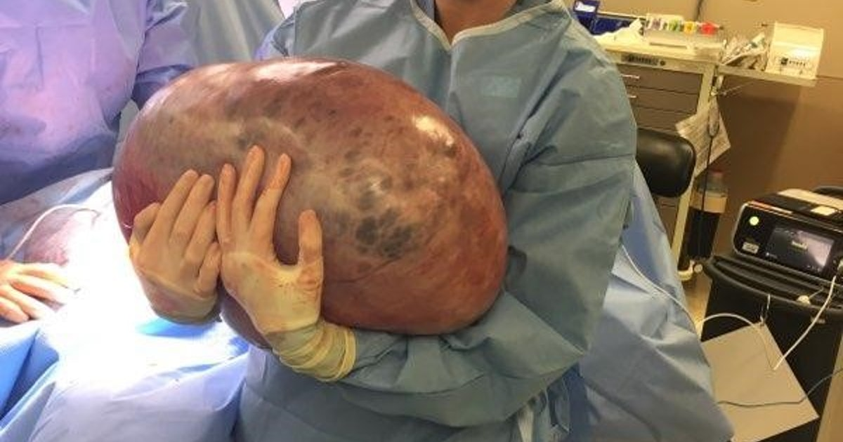A Woman Had A 50 Lb Ovarian Cyst Removed Amp It Was One Of
