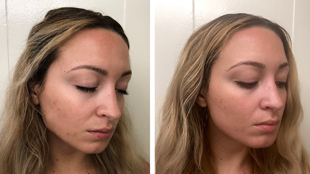 I Tried The Clear + Brilliant Treatment For More Balanced, Even Skin