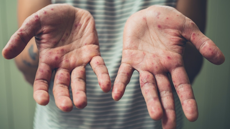 Hand Foot And Mouth Disease Symptoms In Adults