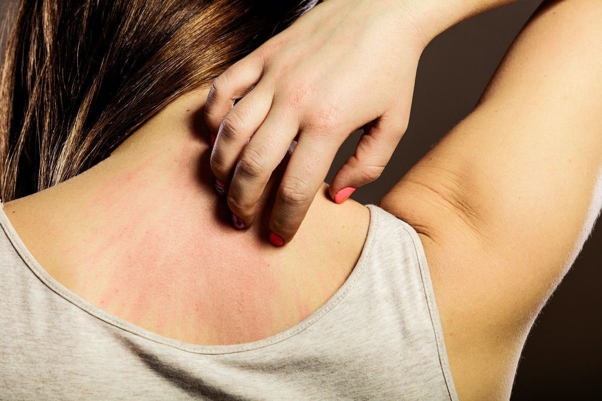 7 Fascinating Signs Your Itchiness Is Actually A Larger Health Issue