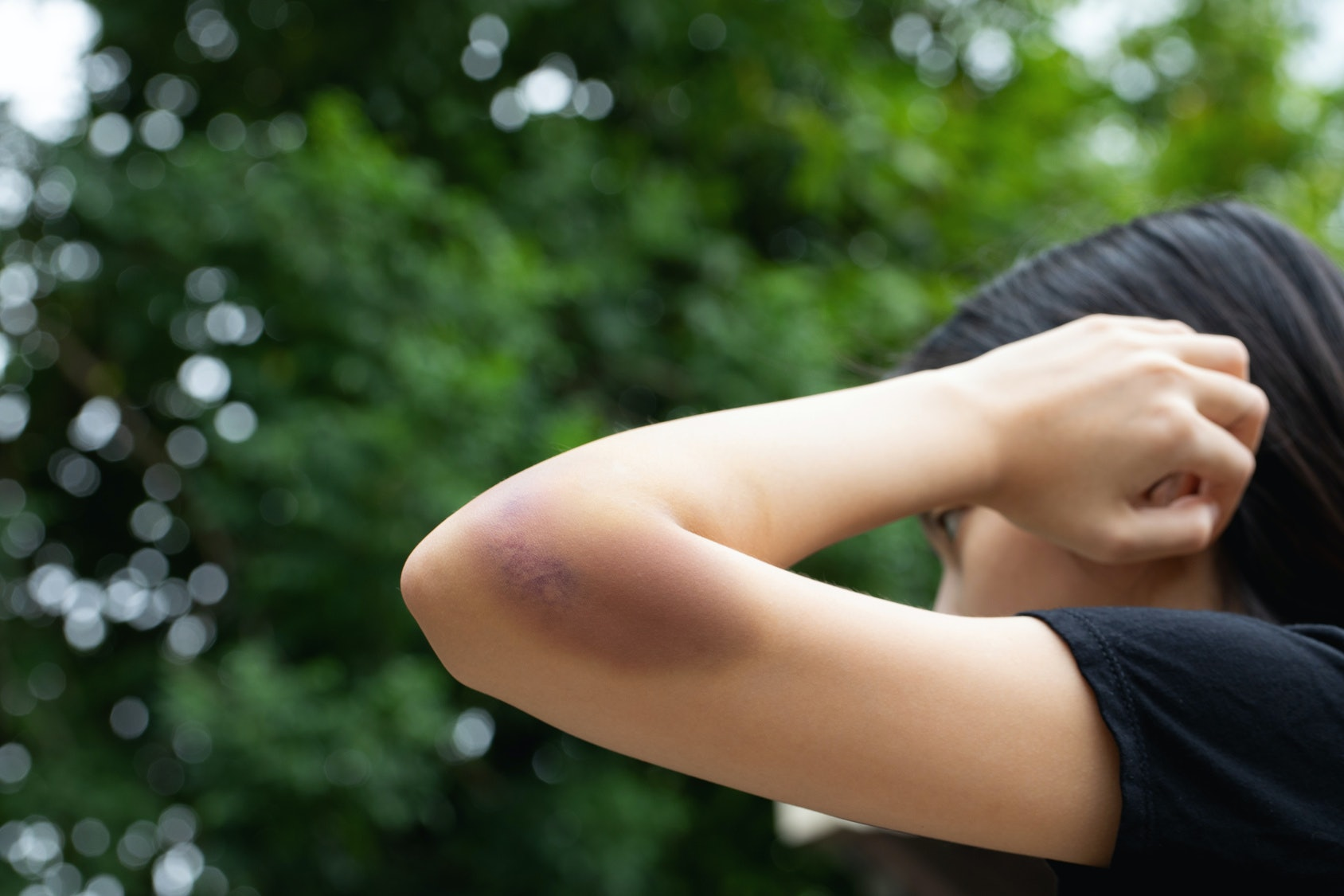 Gel Skin Bruise off: application, properties, composition 76