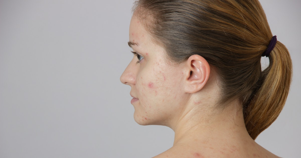How To Get Rid Of Cystic Acne With These 5 Simple Completely Natural Tips That Really Truly Work