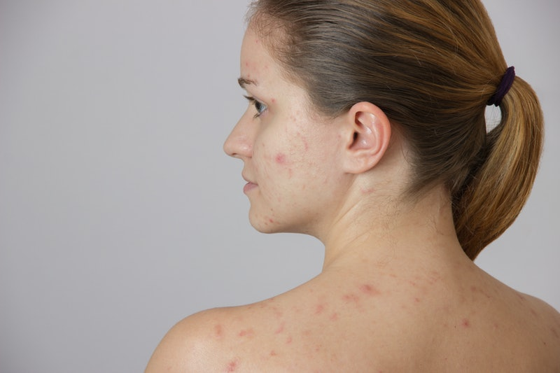 How To Get Rid Of Cystic Acne With These 5 Simple Completely