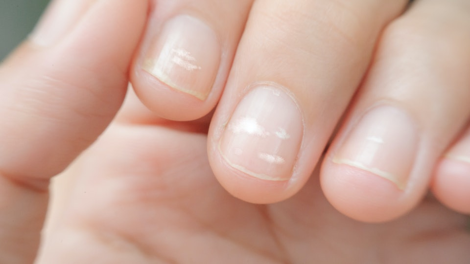 10 Things Your Nails Are Trying To Tell You About Your Health