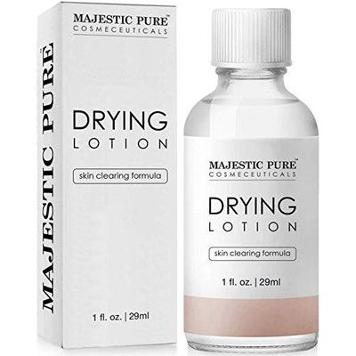 Majestic Pure Acne Drying Lotion