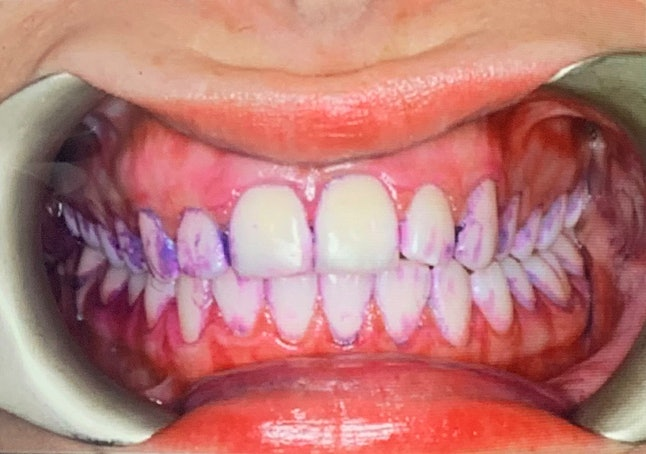 Before Airflow advanced tooth polishing, a vegetable dye tablet is used to see which areas aren't being brushed properly