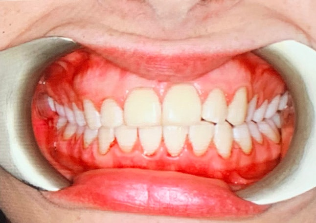 Photos are taken after Airflow advanced tooth polishing to show the difference