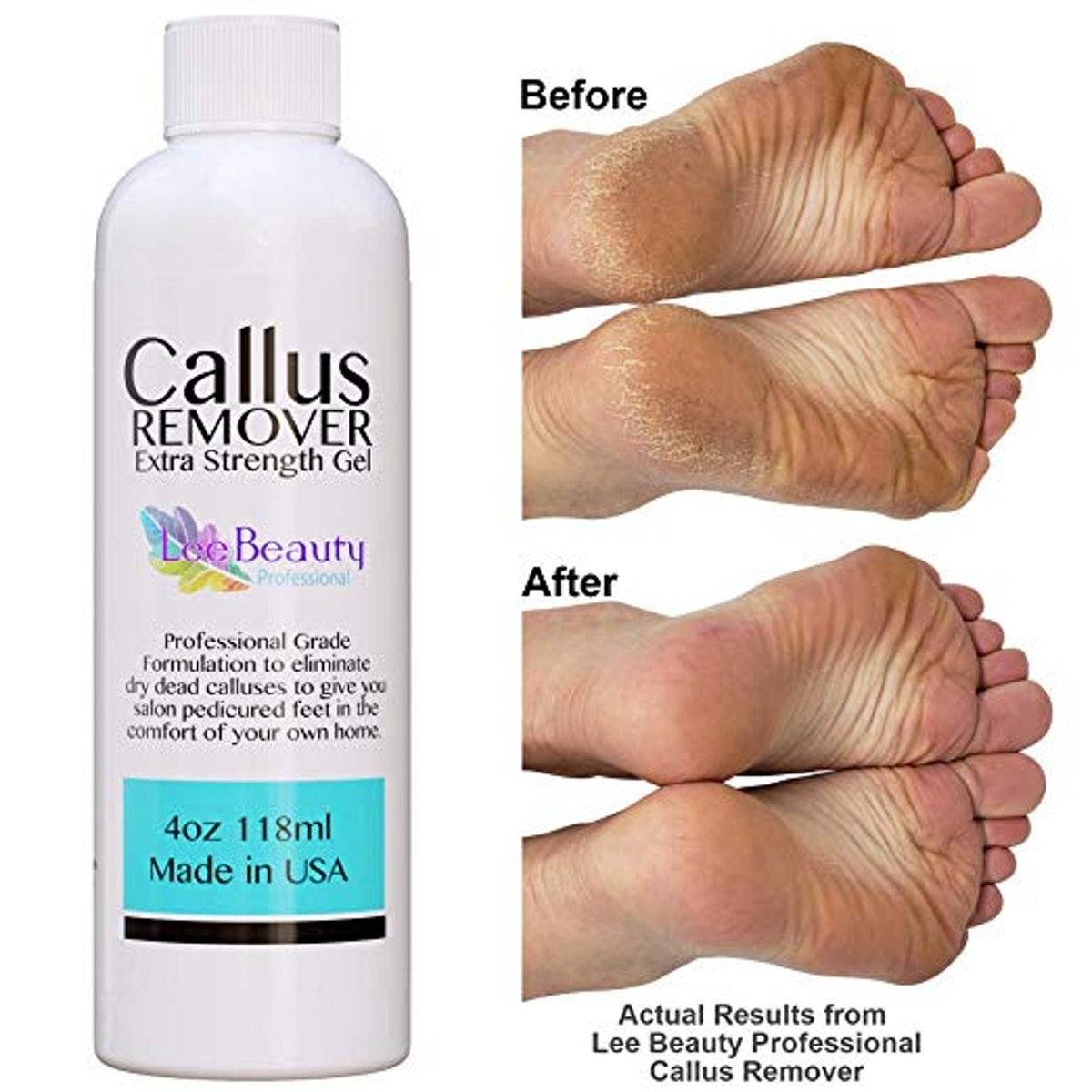 Lee Beauty Professional Callus Remover gel for feet
