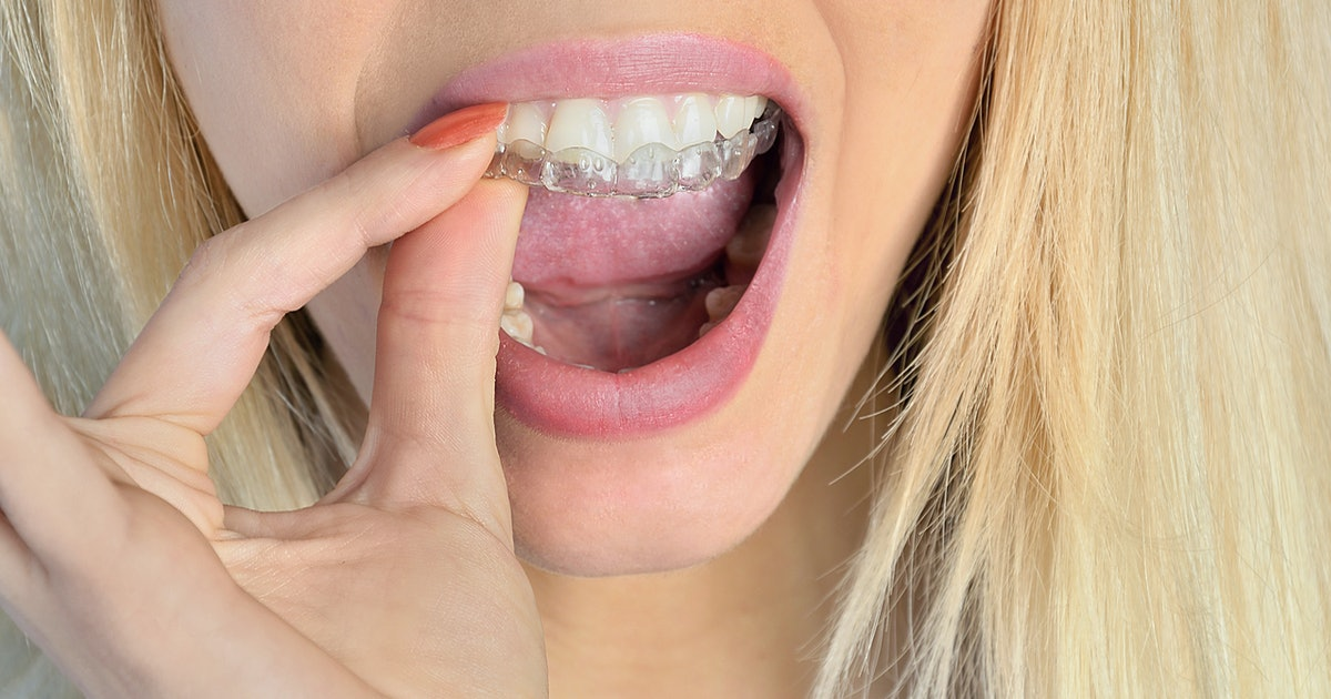 The 4 Best Over-The-Counter Mouth Guards For Teeth Grinding